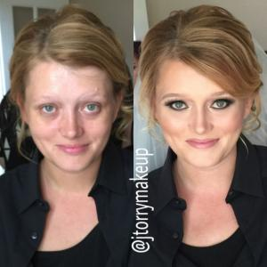 before-after-21
