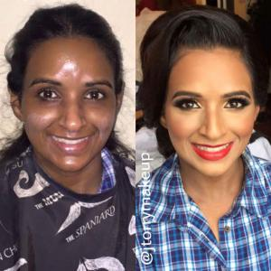 before-after-25