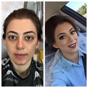 before-after-33